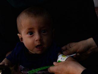 Siria, desnutrición, niños