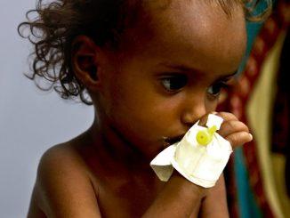 Desnutrición infantil aguda en Yemen